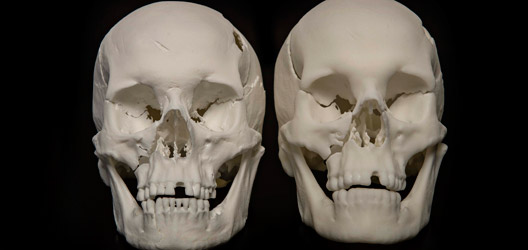Richard III replica skulls