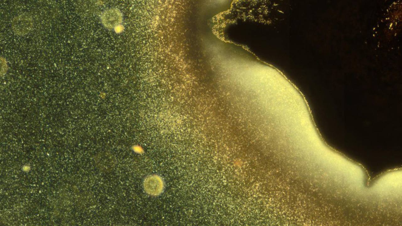 Figure caption: Most microorganisms do not float individually in water but live together in organised communities called biofilms. In this microscopy image, some bacteria (bright particles) are shown as they take the first steps in the formation of a biofilm. Image credits: G. Schkolnik & M. G. Mazza.
